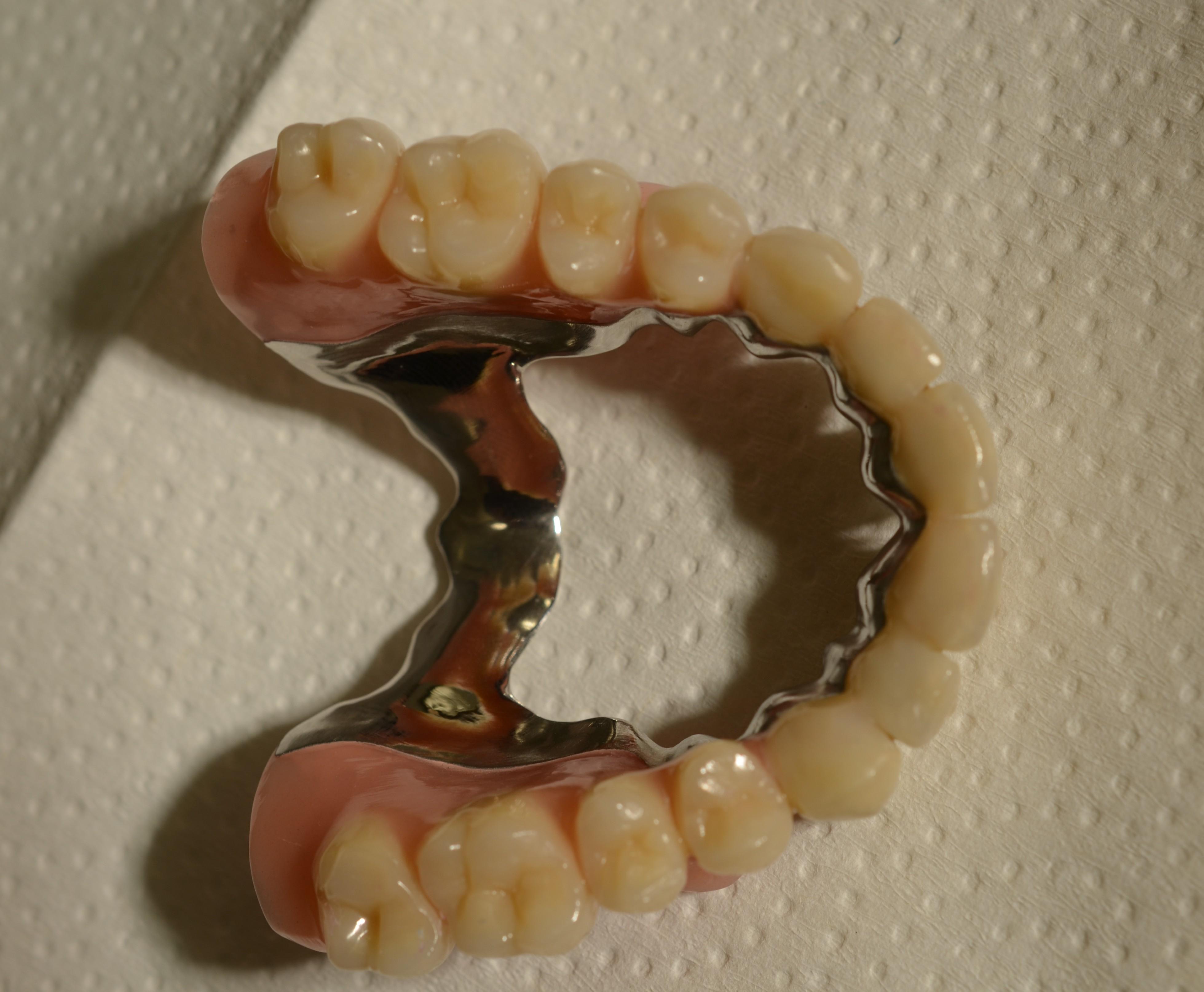Kombiarbeiten bl dentallabor gmbh